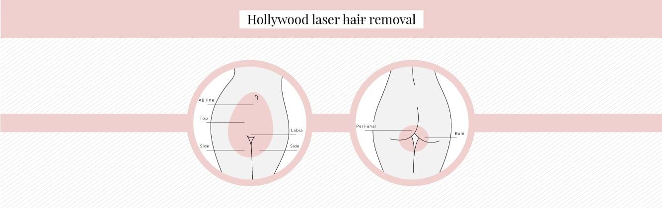 What does a Hollywood bikini look like?