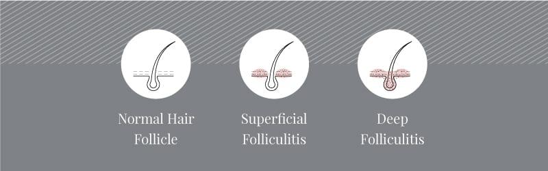 Superficial to deep folliculitis