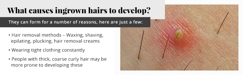 Can Laser Hair Removal Work For Ingrown Hairs