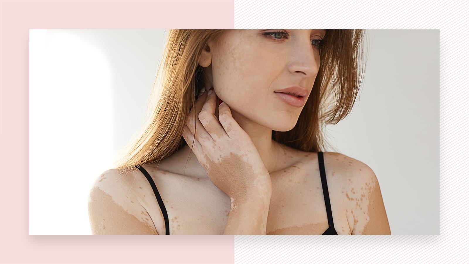 Vitiligo and laser hair removal