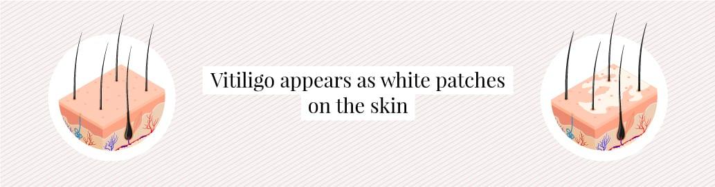 What vitiligo looks like on the skin