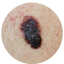 Skin cancer will prevent you having laser