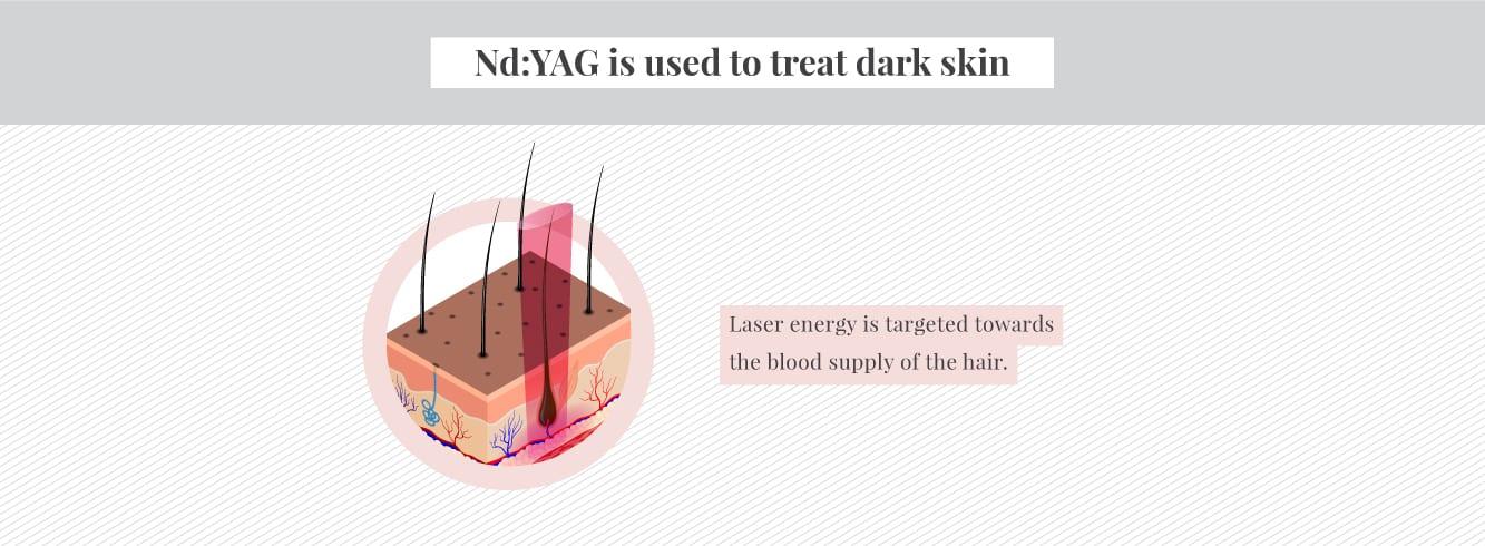 How an Nd:YAG laser works on darker skin for laser hair removal