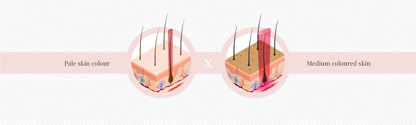 Best time for medium coloured skin types to start laser hair removal