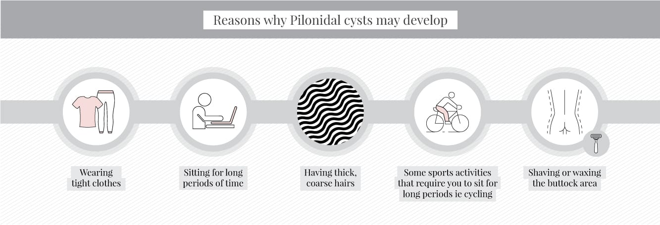 Reasons why pilonidal cysts develop