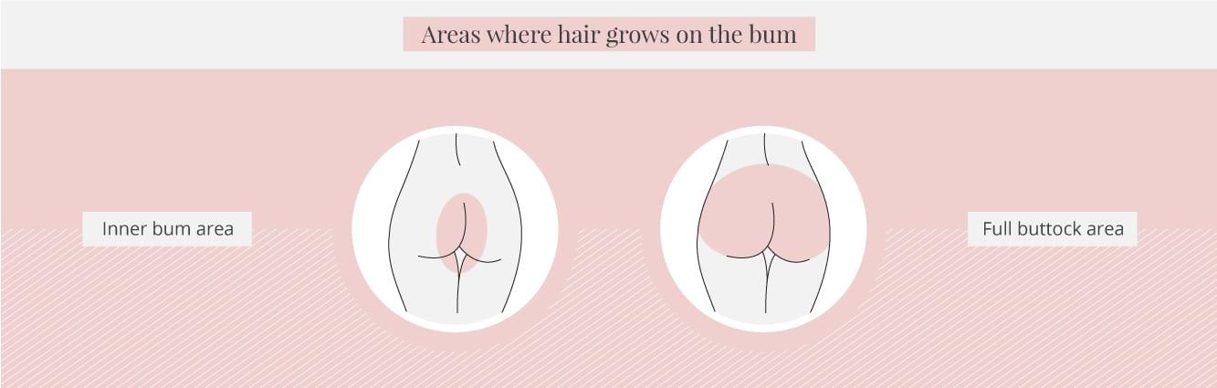 Areas where hair grows on the bum area