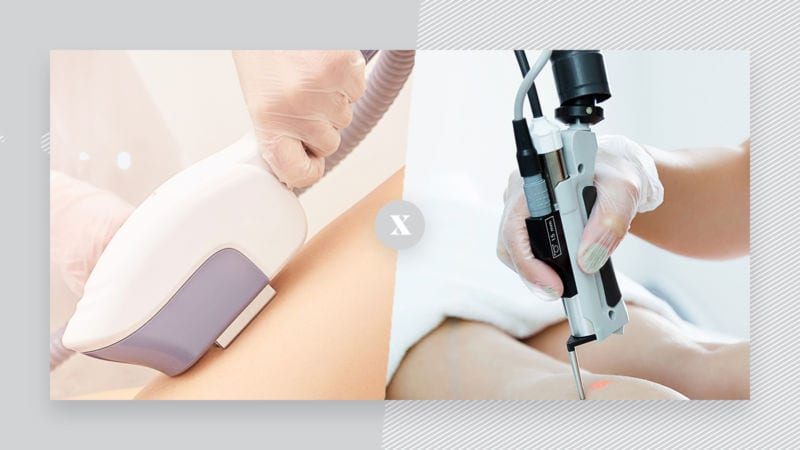 What's the difference between laser and IPL
