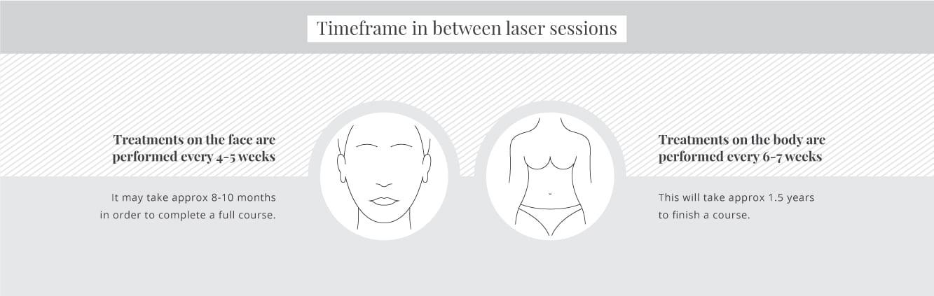 Timeframes in between laser sessions